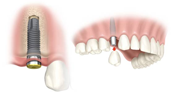 dental implant vancouver dentist