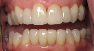 Case Study #4 - another happy smile