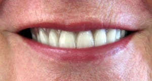 Case Study #5 - another happy smile